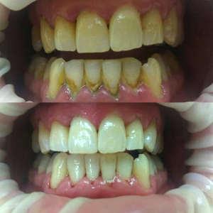 До и после профессиональной чистки зубов
