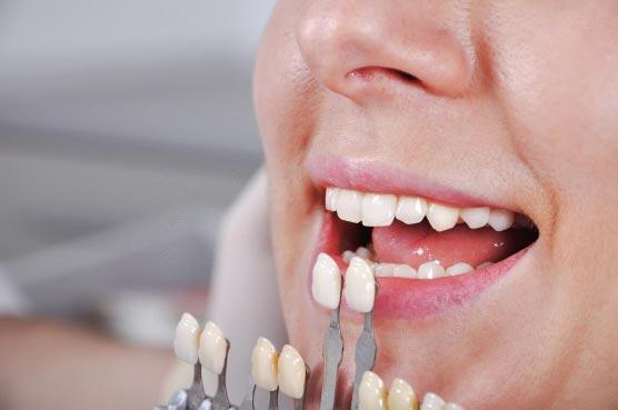 Определение оттенка зуба