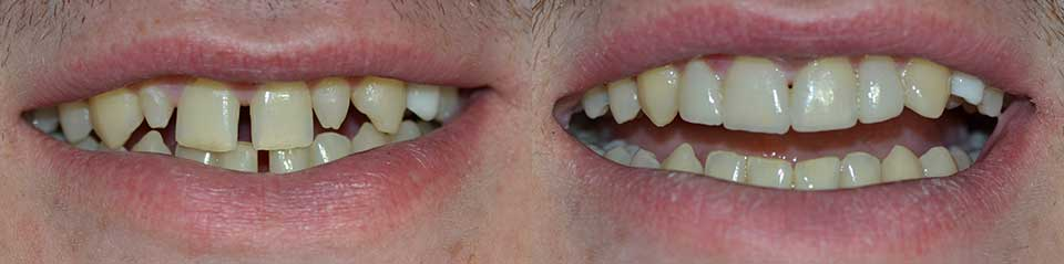 Как сделать брекет для зубов 701