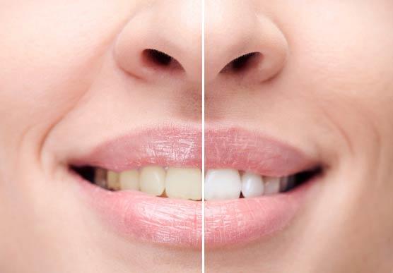 отбеливание зубов под лед лампой