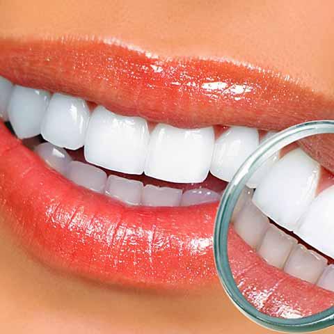 Фото відбілених зубів крупним планом і в стоматологічному дзеркалі