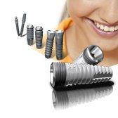 Зубний імплантат