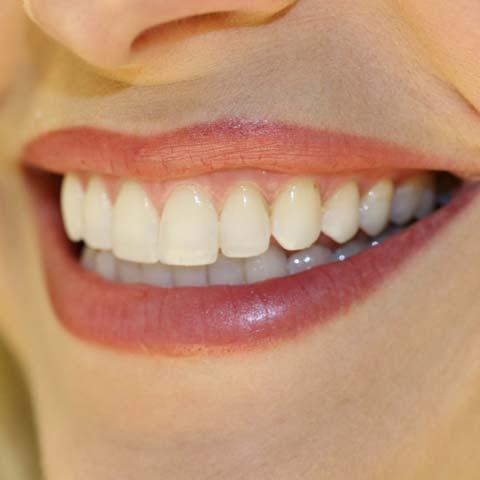 Потемнілі зуби
