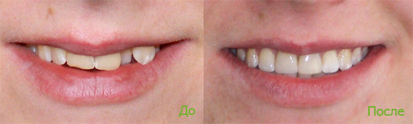 Фото до і після лікування брекетами