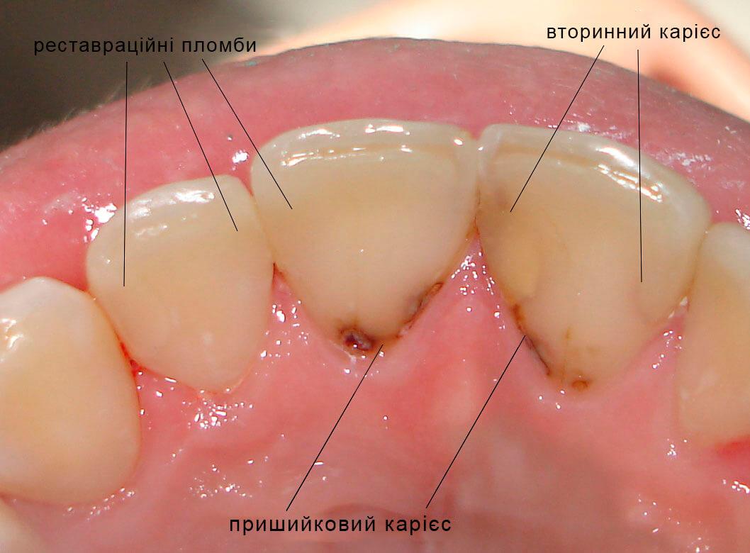 Карієс зубів