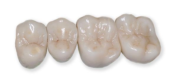 Коронки из диоксида циркония, боковые зубы