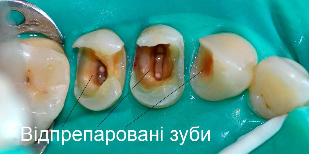 Відпрепаровані зуби