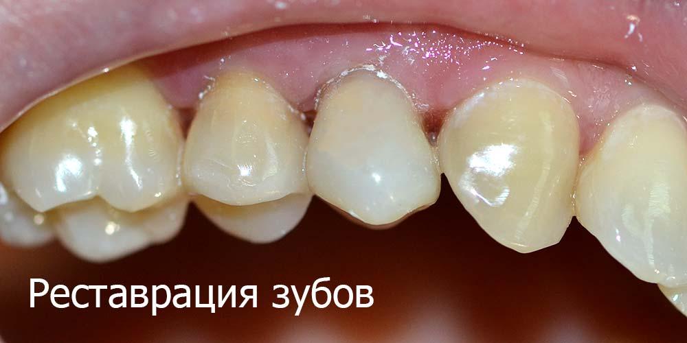 Реставрація зубів