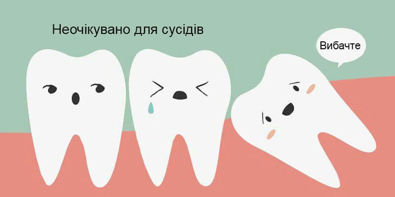Зуб мудрості