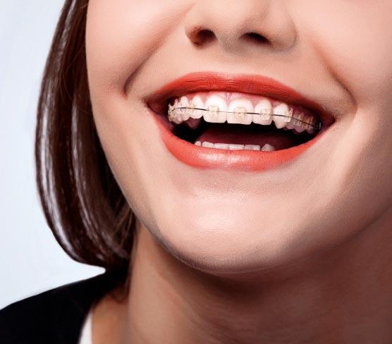 Брекети вирівняли зуби