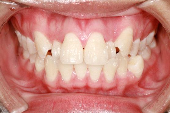 Ортодонтическая патология