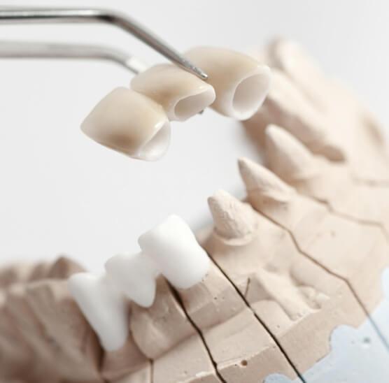 Каркас протеза из диоксида циркония