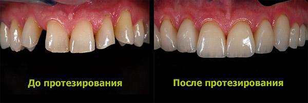 Протезирование зубов, фото до и после