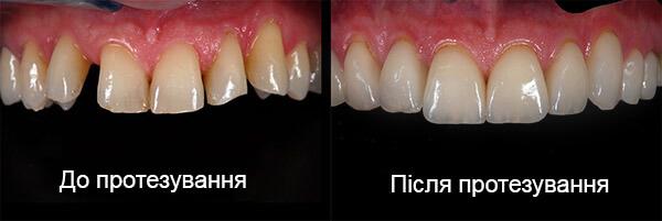 Протезування зубів. Фото до і після.