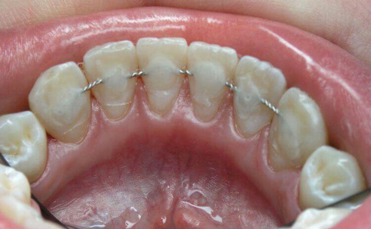 Шиновані зуби